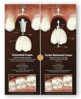 Tek Diş İmplant Tedavisi Ankara
