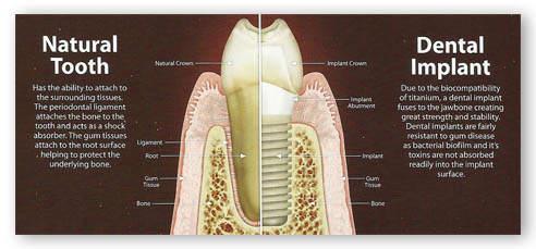 doğal diş ve implant karşılaştırması